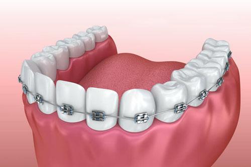 Tratamiento de Ortodoncia Dental.